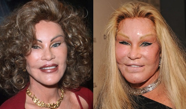 10 High Profile Cases of Plastic Surgery Gone Terribly Wrong